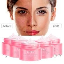 Skin Whitening Cream Freckle Cream Remove Melasma Acne Dark Pigment Spots Melani