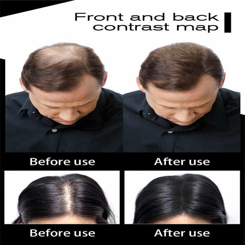 毛髪繊維ケラチン Toppik 肥厚スプレー髪ビル繊維 27.5 グラム減量製品インスタントかつら発粉末