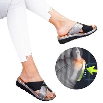 Oeak Women Shoes Slippers Orthopedic Bunion Corrector Comfy Platform  Ladies Casual Big Toe Correction Sandal