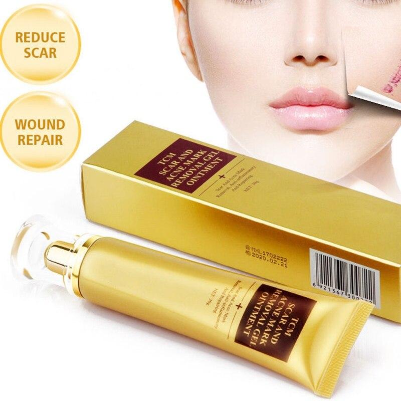 30g Scar Removal Cream Skin Repair Face Cream Acne Spots Treatment