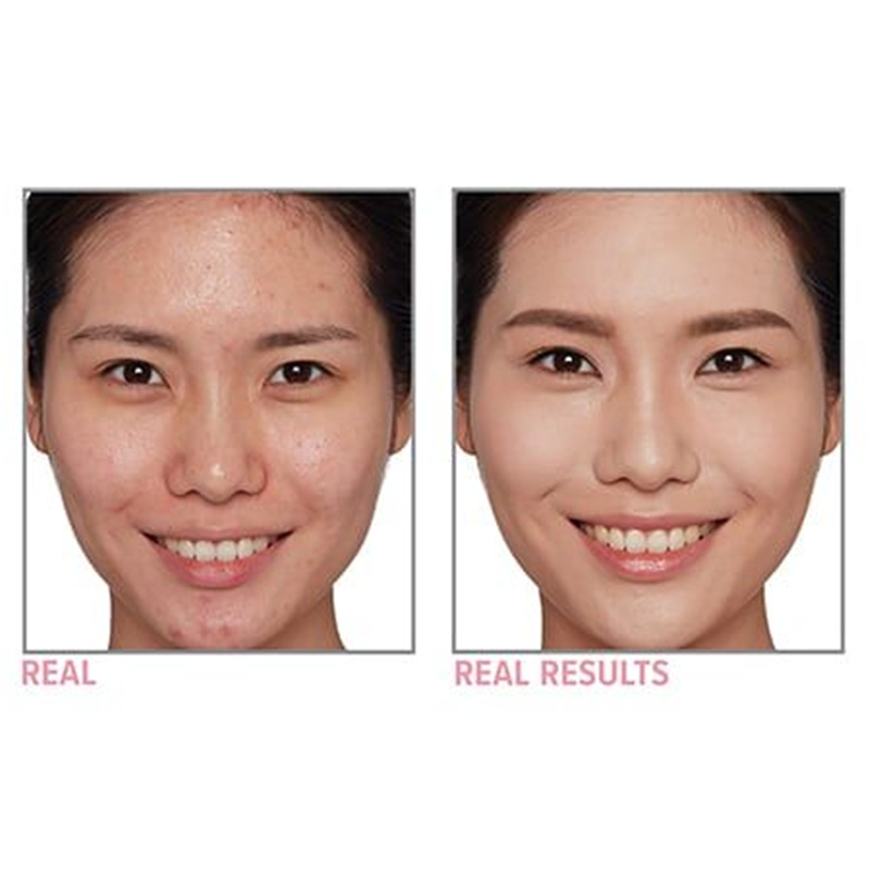 it-cosmetics-foundation-cc-cream-oil-free-before-after-02-medium