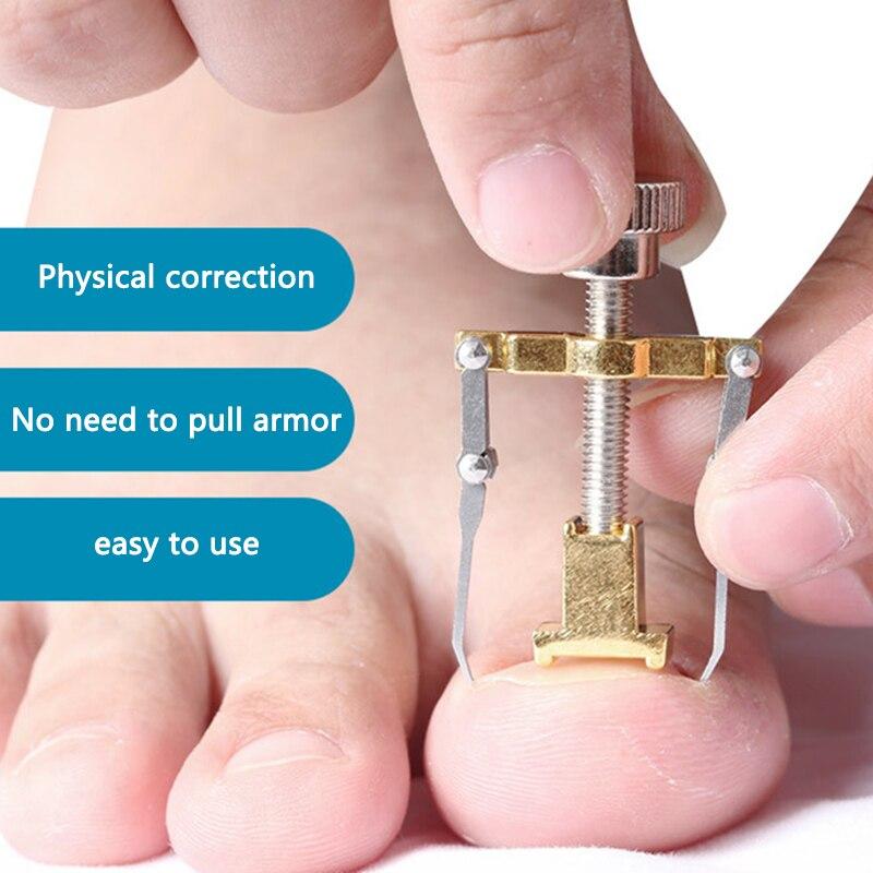 1pc Useful Ingrown Nail Foot Correction Tool Pedicure Toenail Fixer Foot Nail Care Tool Orthotic Nail Corrector Pedicure Tool