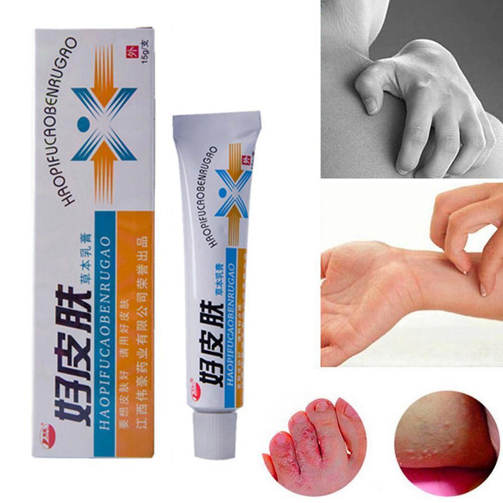 1PCS Skin Psoriasis Cream Dermatitis Eczematoid Eczema Ointment Treatment Care Skin Psoriasis Cream Cream Body Dropshipping O9X4
