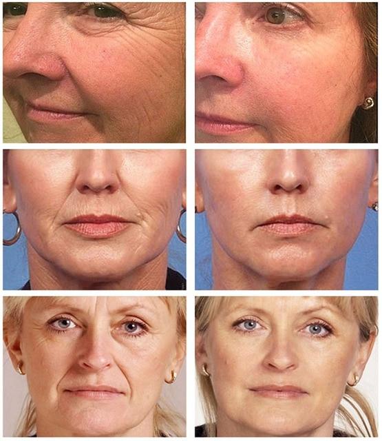 Anti-Aging Whitening Hyaluronic Acid Moisturizer 2