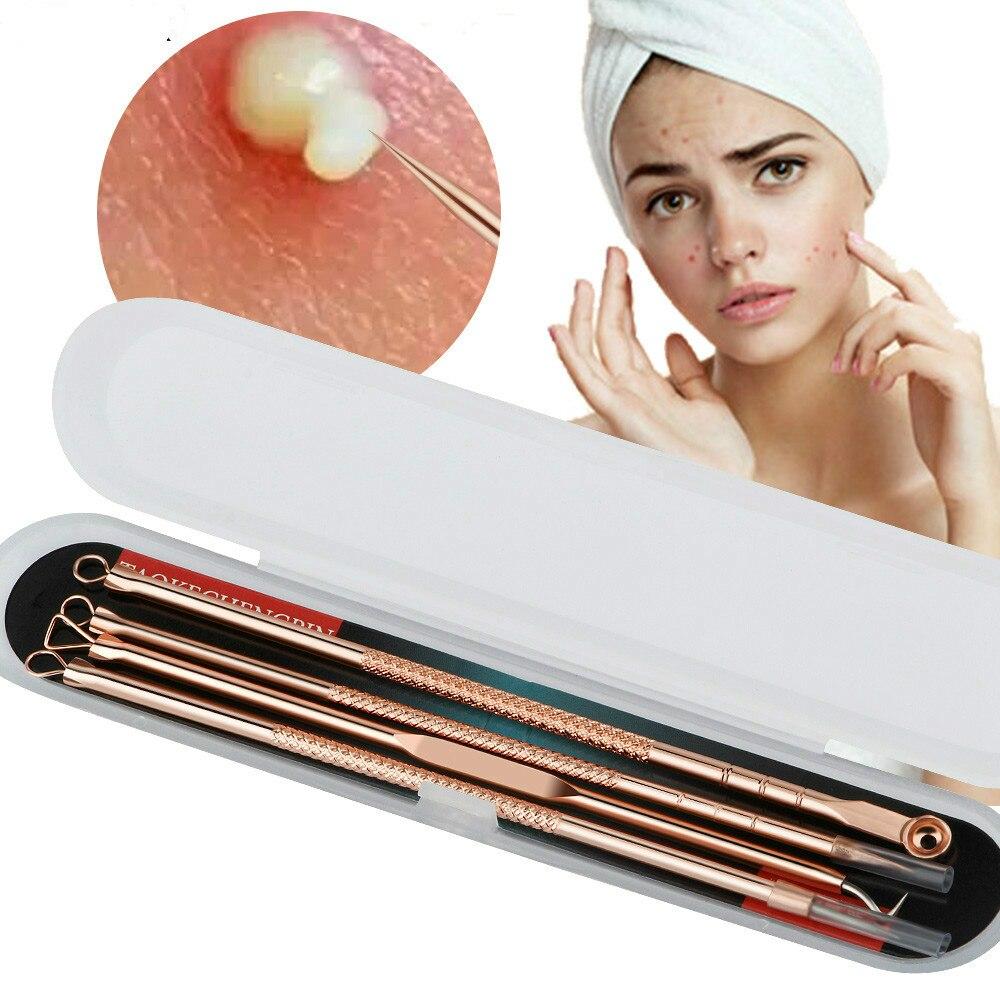 Rose Gold 4 teile/satz Mitesser Komedonen Akne Pickel Belmish Extractor Vakuum Mitesser Entferner Werkzeug Löffel für Gesicht Hautpflege Werkzeug