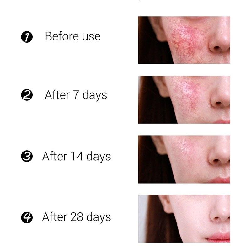 Acne Treatment Face Cream Blackhead Repair Gel Oil Control Shrink Pores Scar Whitening Moisturizer Skin Care Korean Cosmetics 4