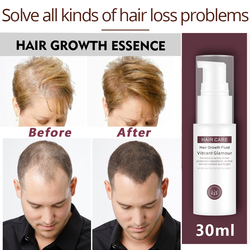 VIBRANTGLAMOUR Hair Growth Essence Essential Oil Liquid Spray Nourish Roots Thick Shiny Prevent Hair Loss Anti-hair For Menwomen