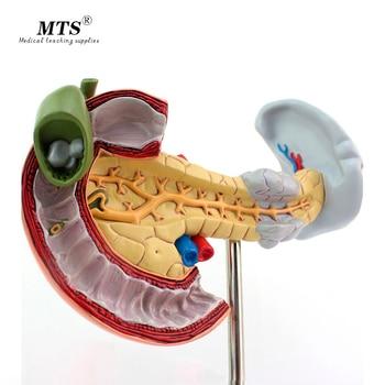 Medical Pancreatic Duodenum and Gallbladder Pathology Model Digestive System Digestive Model Skeleton Model Anatomical Model detailed anatomical urinary system model