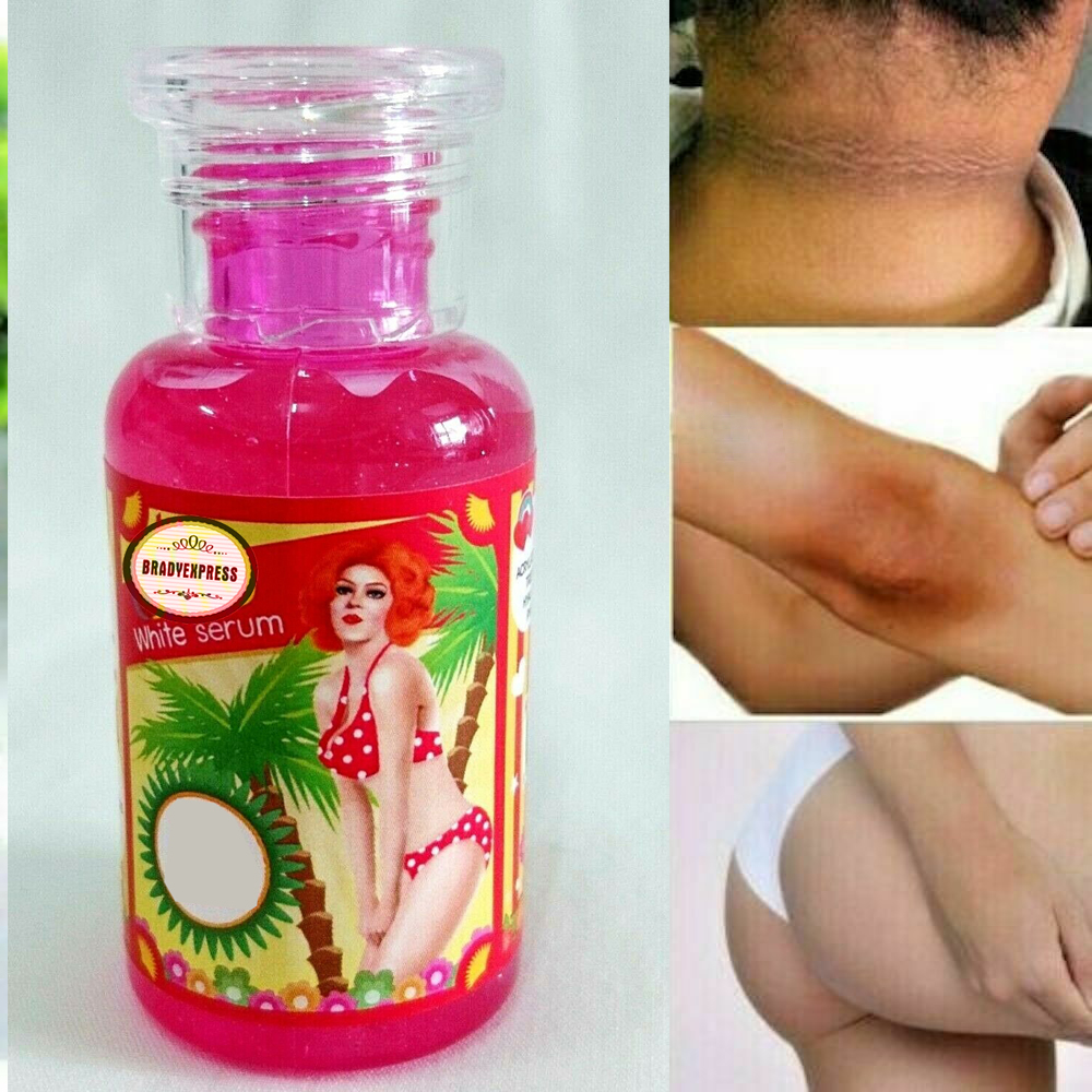 Skin Whitening Body Serum Help Solve Problems For Women Skin Is Clearly 30g