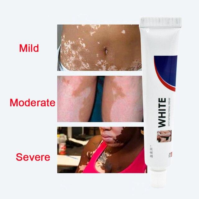 Crema médica china para las enfermedades de manchas blancas, pigmento de melanina que promueve el linimento de la piel, tratamiento de la enfermedad de Vitiligo Leukoplakia, 20g