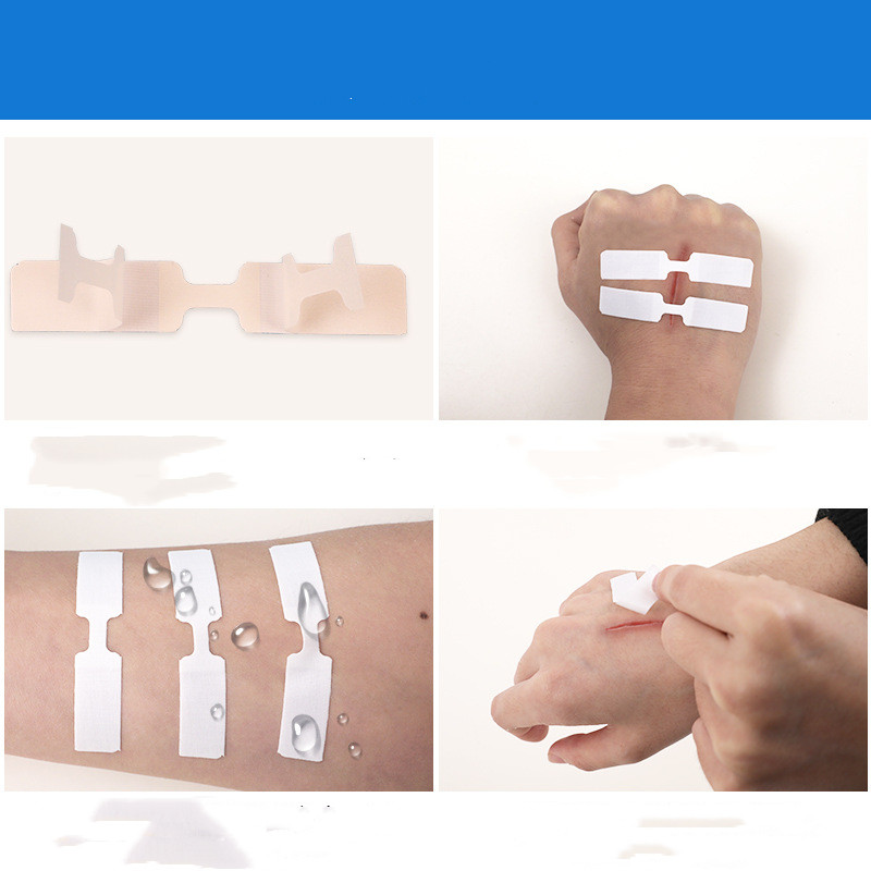 10Pcs/Box Waterproof Band Aid Butterfly Adhesive Wound Closure Band Aid Emergency Kit Adhesive Bandages 45*10mm/70*12mm