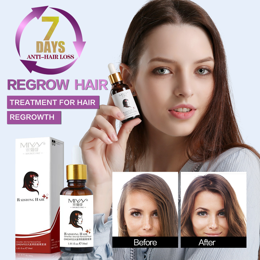 Hair Growth Essential Oil Essence Prevent Hair Loss Treatment Hair Growth Restoration Pilatory Health Hair Care Hair Serum