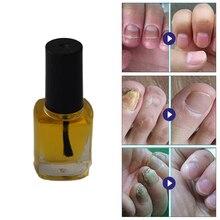 1 шт., абсолютно онихомикоз, эфирное масло, грибковое Лечение ногтей, против грибка, ногти на ногах, натуральные травяные средства, маникюрный раствор