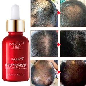 Haar Olie Haarverzorging Snelle Krachtige Haargroei Producten Hergroei Essentie Vloeibare Behandeling Voorkomen Haaruitval Voor Mannen En Vrouwen