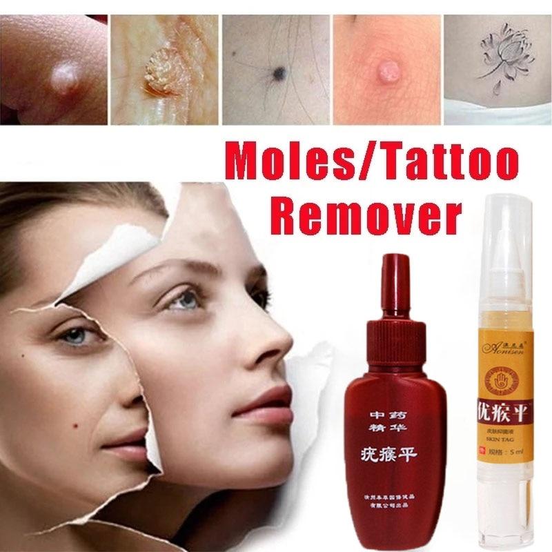 Mole & Genital Wart Remover  4