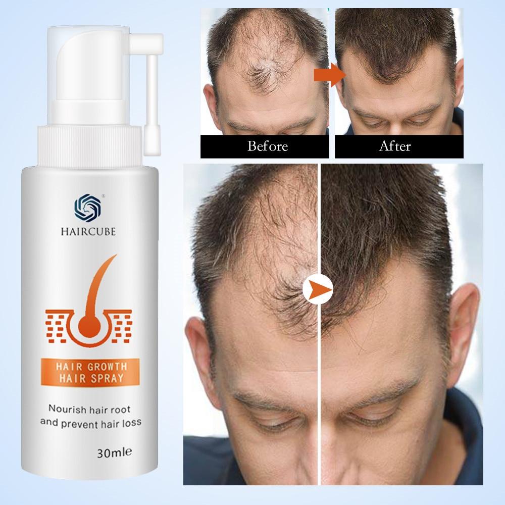 Продукты для роста волос HAIRCUBE Сыворотка для роста волос уход за волосами средство для ухода за волосами органическое масло против выпадени...