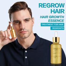Hair Care Products Hair Growth Essential Oils Essence Anti Hair Loss Liquid Health Care Beauty Dense Hair Growth Serum cheap 20161242 Hair Loss Product Seabuckthor 1 bottle 30ml yfy08
