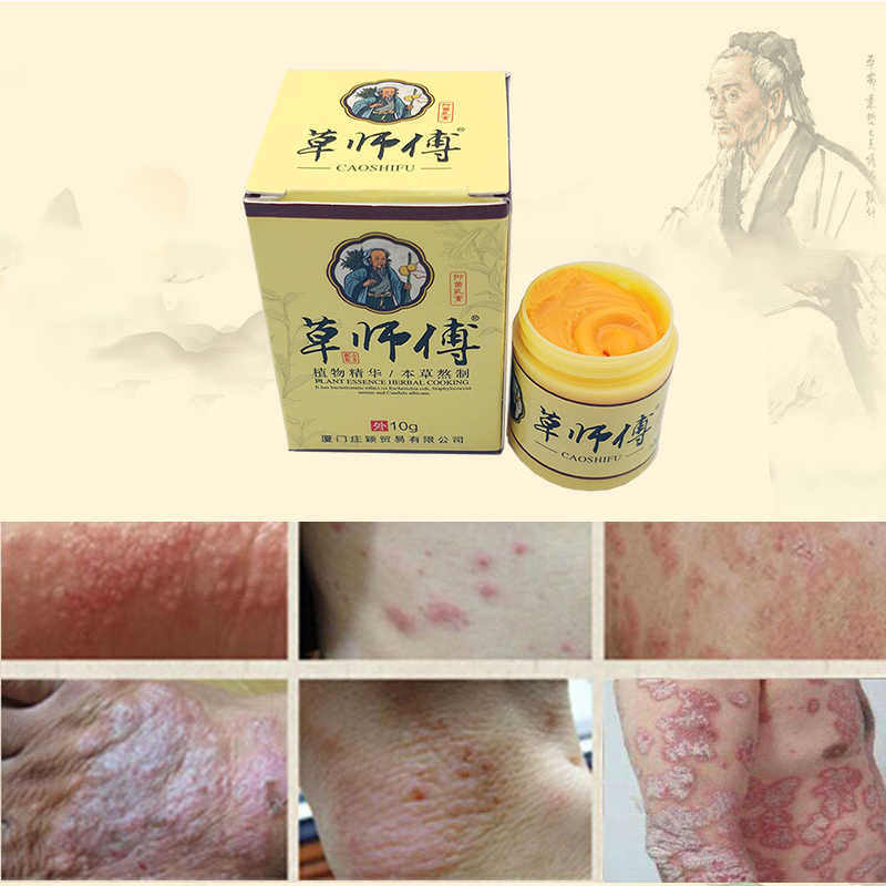 1pc Skin Psoriasis Cream Dermatitis Eczematoid Eczema Ointment Treatment Psoriasis Cream Skin Care Cream 10g image