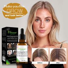 Hair Care Hair Growth Essential Oils Essence Original Anti Hair Loss Liquid Health Care Beauty Dense Hair Growth Serum 30ml cheap 20170092 Plant Essence 1 Bottle 30 ml Hair Loss Product ZYY02-1