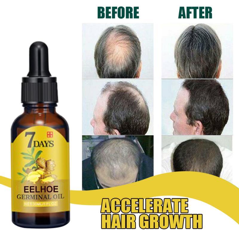 Экстракт имбиря, эффективное средство против выпадения волос, кондиционер, натуральное имбирное эфирное масло, быстрорастущий Восстанавли...
