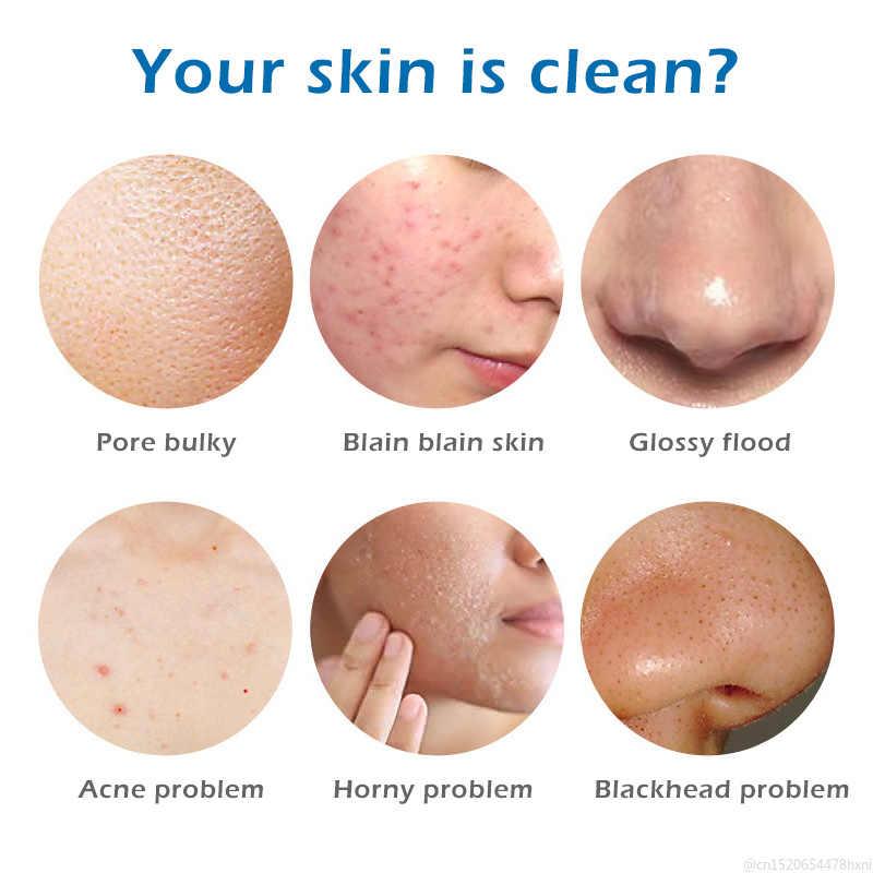 Control de aceite contracción de poros limpieza profunda GRASA cara suciedad Wahsing jabones blanqueamiento de la piel Esencia De Rosa antiarrugas jabones nuevo