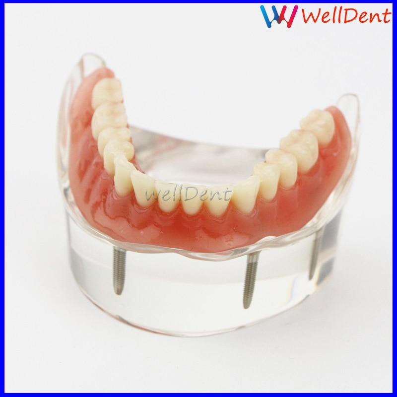 implante modelo de demonstração dentes modelo de