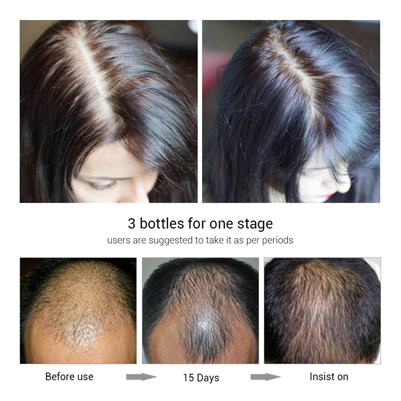 Forte nutrir raízes do cabelo rebrota h