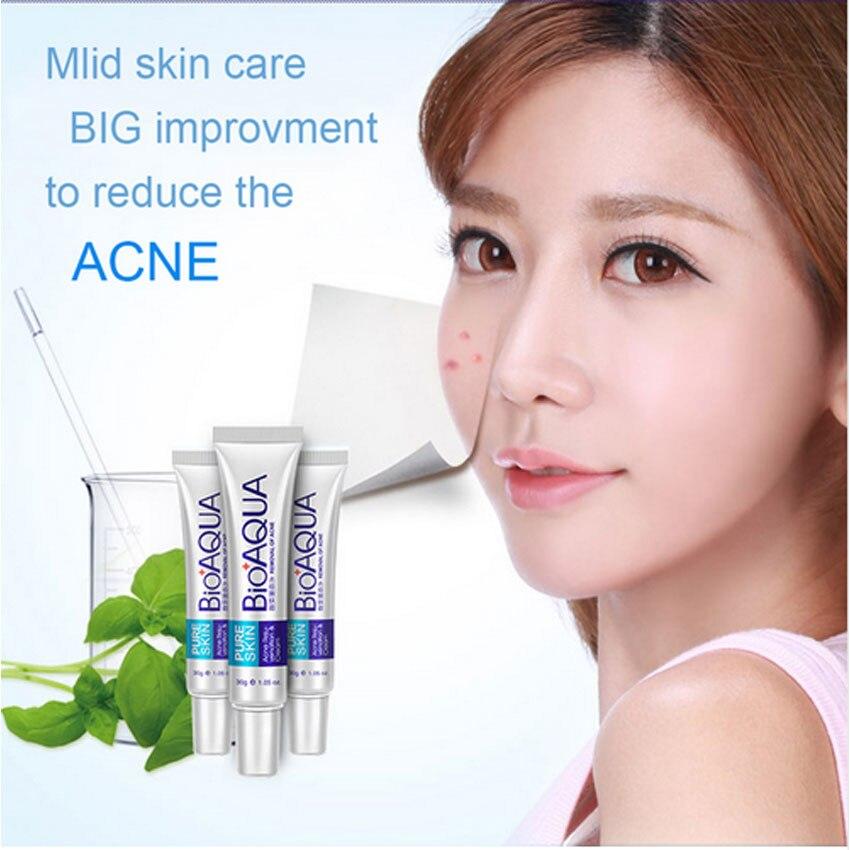 Skin Care Brand BIOAQUA Acne Scars Cream Acne Treatment Face Care Anti Acne Removal Gel Whitening Moisturizing Cream 30g Makeup 3