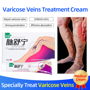 Varicose Veins Treatment Oinment Varicosity Angiitis Varicocele Remove Ointment Relief Pain Phlebitis legs Varicose Veins Care image
