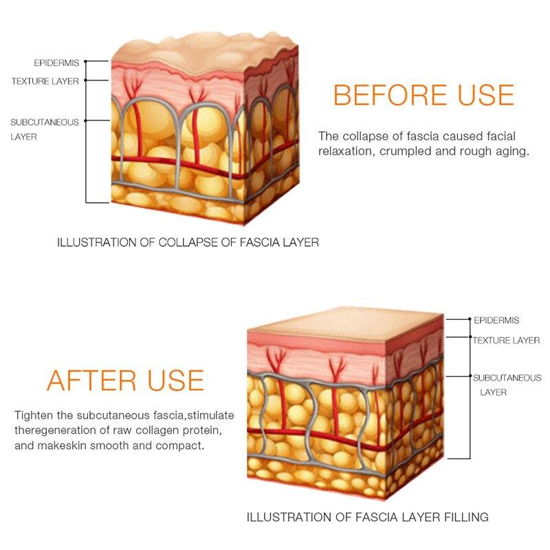 RF Radio Frequenz Gesicht Hautpflege Verjüngung Falten Entfernung Hebe Anziehen Gesichts Physischen Körper Massage Schönheit Maschine