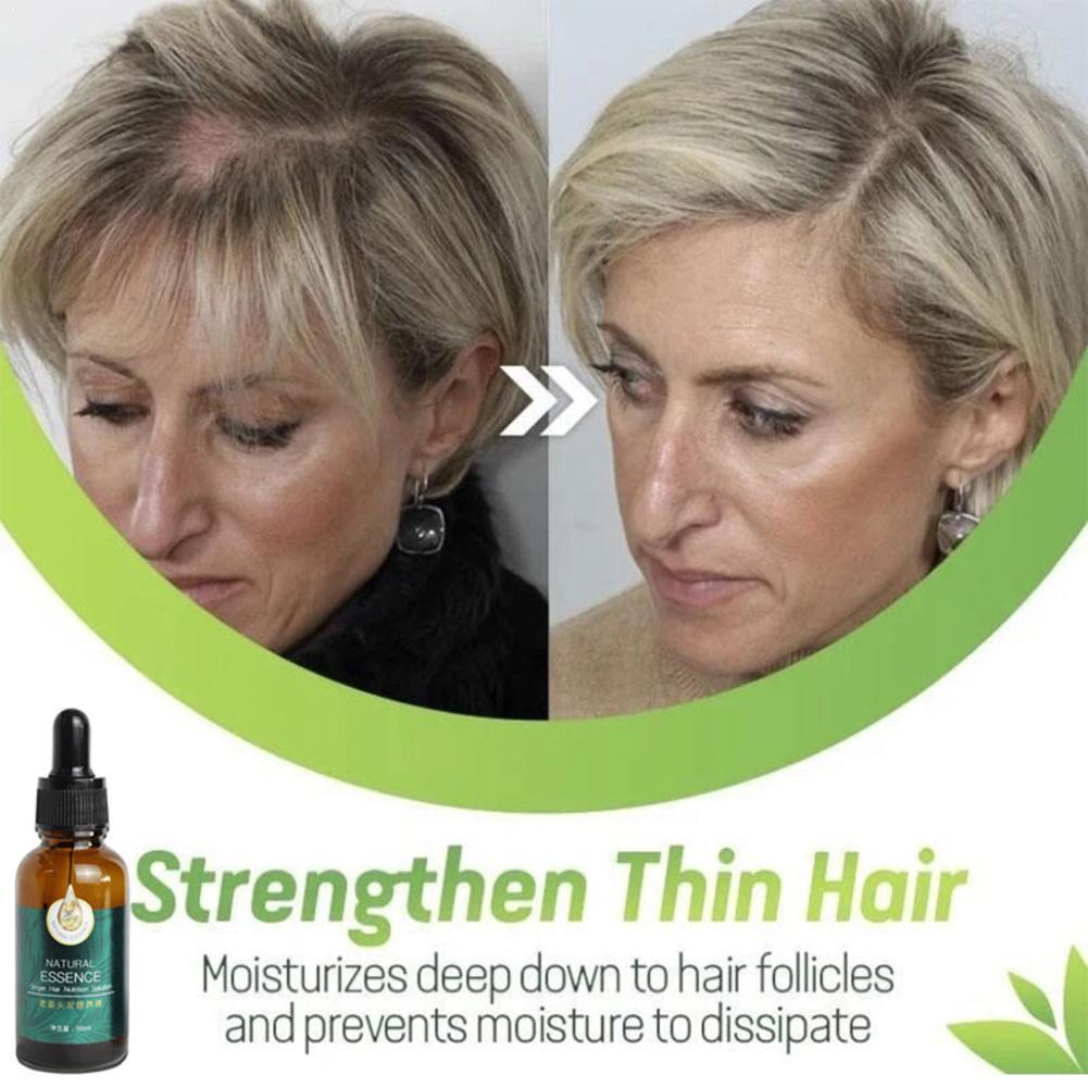 1pc 7X Rapid Growth Hair Treatment Anti Hair Loss Fast Growth Ginger Hair Oil Serum Essential 30ml J4F0