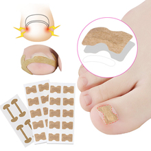 Ingrown Toe Nail Correction Patch Paronychia Corrector Sticker Pedicure Orthodontic Toe Thumb Patch Stickers Pain Relief Toenail