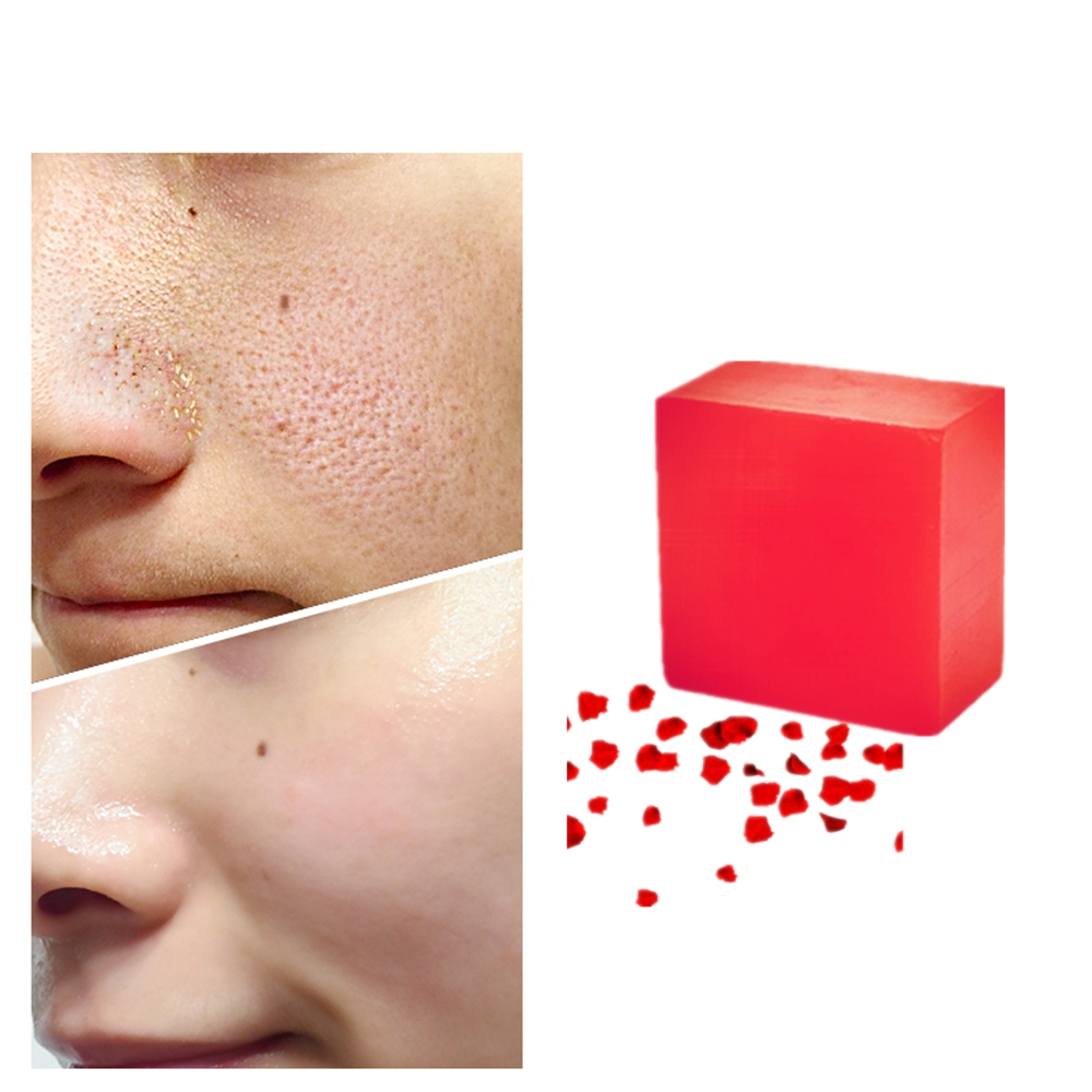 Srong Anti Scar Pimples Treatment Red Rose Essence Soaps Shrink Pores Anti Aging Intensive Firming Skin Handmade Soap 1Pcs