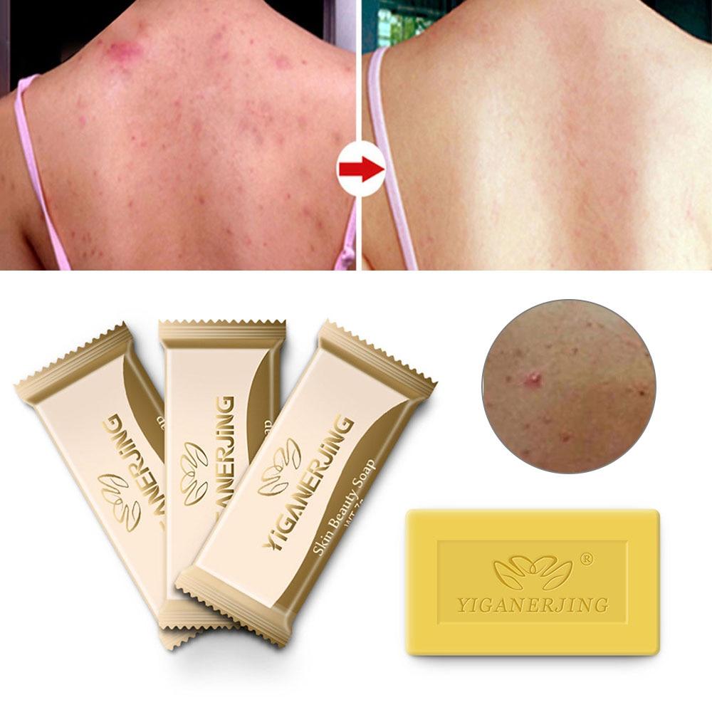 1pcs Sulfur Soap Skin For Acne Psoriasis Seborrhea Eczema Anti Fungus Antibacterial Treatment Bath Beauty Soap Trial Pack TSLM1