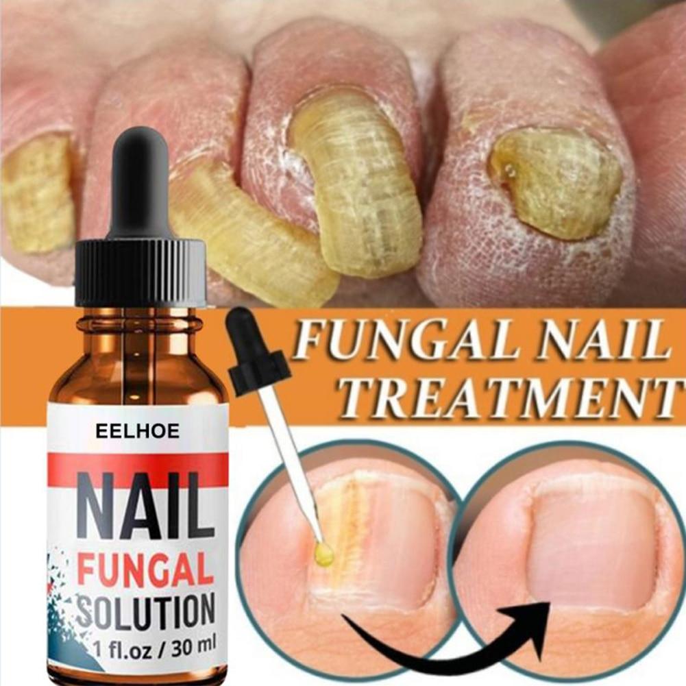 10/20/30ml Nail Repair Serum Essences Fungal Care Treatments Foot Nail Fungu Removal Gel Anti-infective Paronychia Onychomycosis
