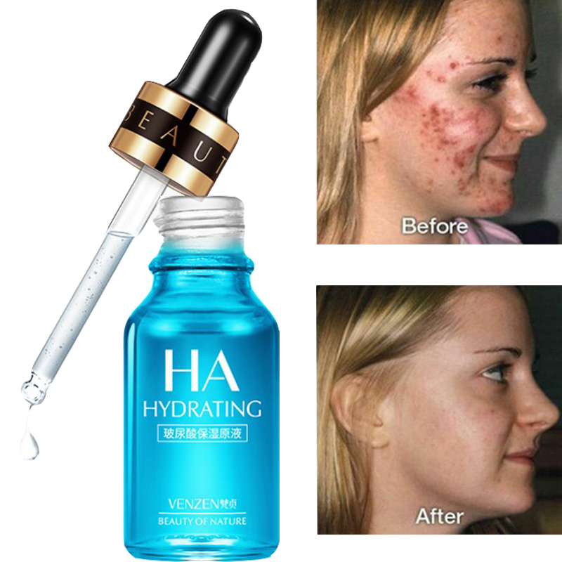 Hyaluronic Acid Essence Facial Removal Melanin Whitening Essence Facial Acne Spot Correction Toner