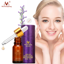 MeiYanQiong Face Care  Scar Removal Cream Acne Spots Skin Care Treatment Stretch Marks Whitening Remove Acne Face Essential Oil цена и фото