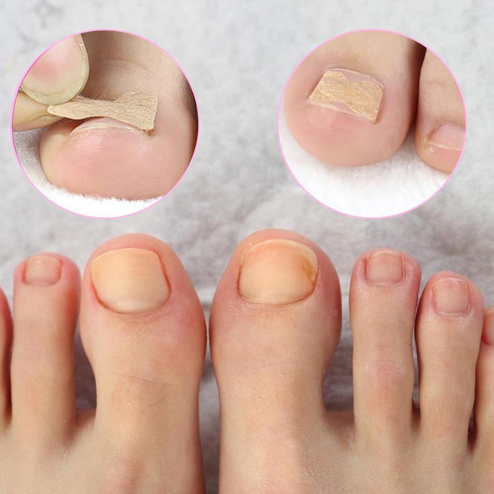 1.3 * 1.8cm 10 Pcs/Set Ingrown Toenail Corrector Stickers Corrector Treatment Paronychia Recover Tools Pedicure Fingernail O2O2
