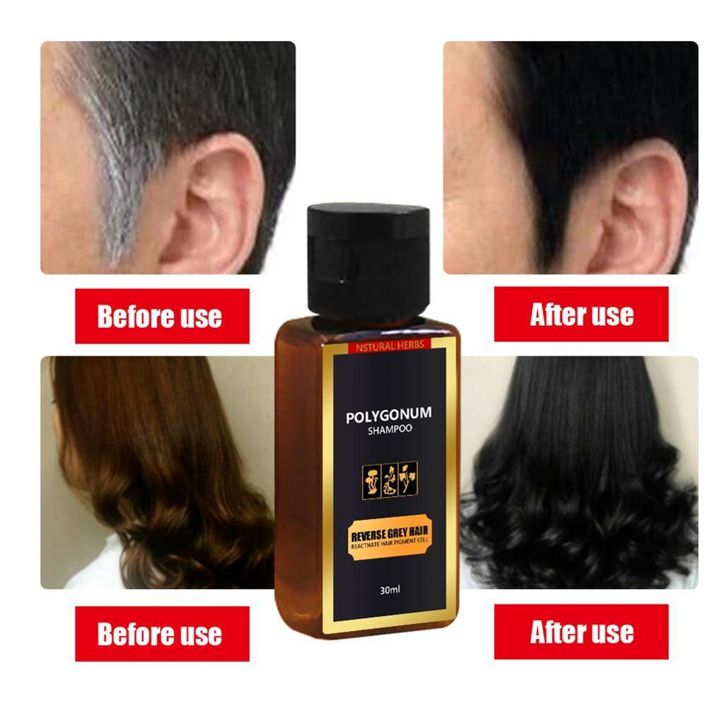 30ml Black Hair Shampoo Grey Reverse Hair Color Shampoo  Anti Gray Hair Treatment White Removal Natural Herbal
