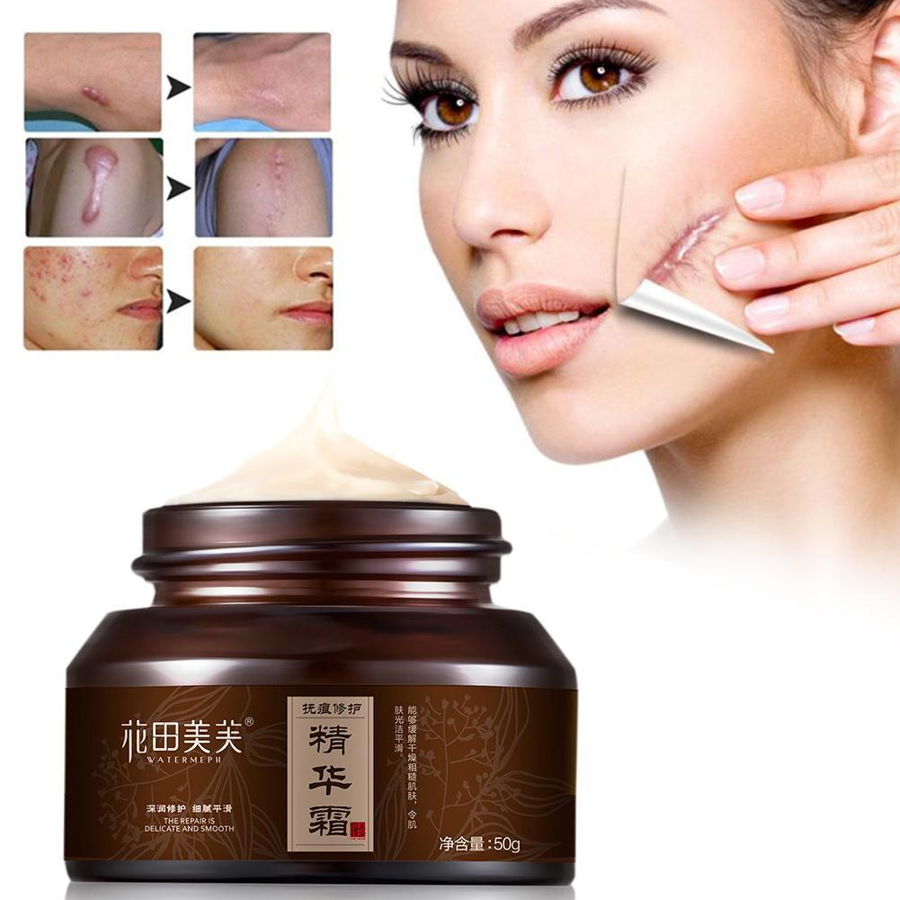 Powerful Whitening Freckle Cream Chinese Herbal Plant And Freckles Cream Dark Face 30g Whitening Cream Spots Remove Skin D8Z0