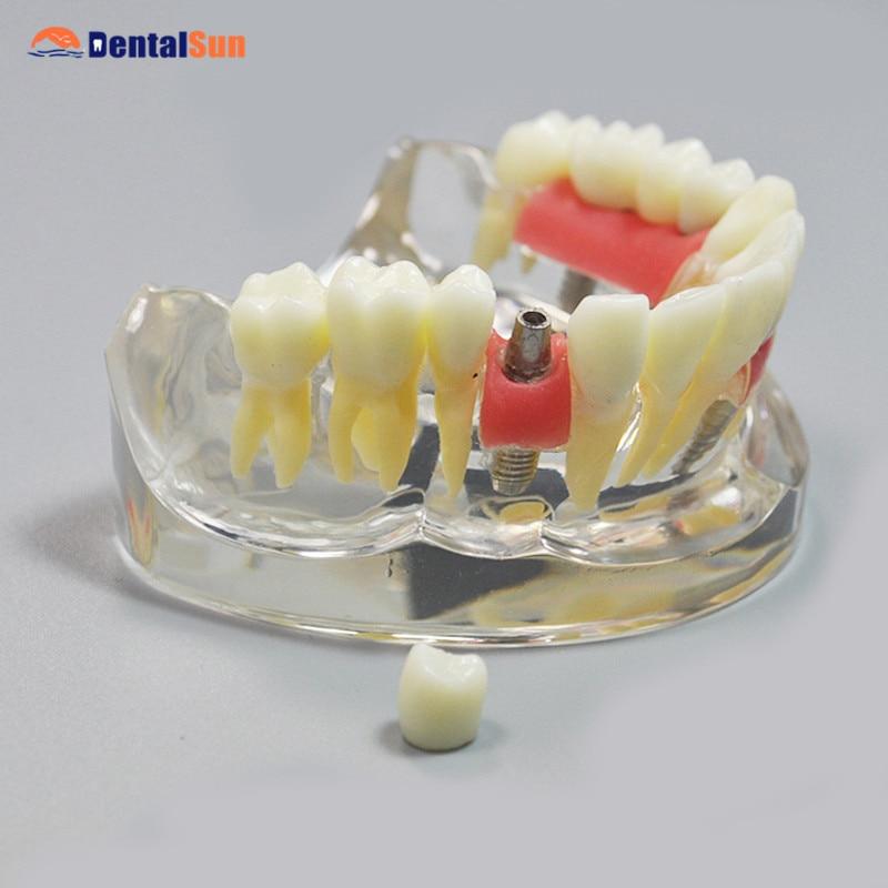 Dental M2005 Implant Model Dental Teeth Model