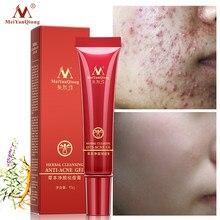 Wysokiej jakości ziołowy oczyszczający twarz anty krem do leczenia trądziku ziołowe usuwanie blizn tłusta skóra trądzik plamy pielęgnacja skóry twarz