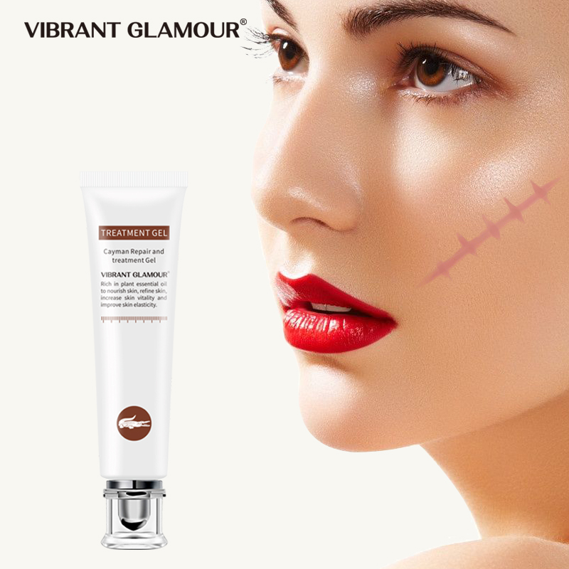 VIBRANT GLAMOUR Cream Scars Crocodile Dispel Scar Repair Face Gel Remove Acne Scar Stretch Marks Treatment Skin Lightening Care