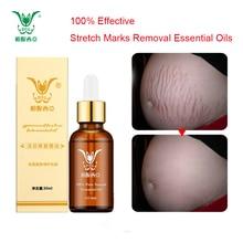 Эфирные масла для Удаления растяжек, чистый натуральный крем для Удаления растяжек после родов, против морщин, уход за кожей