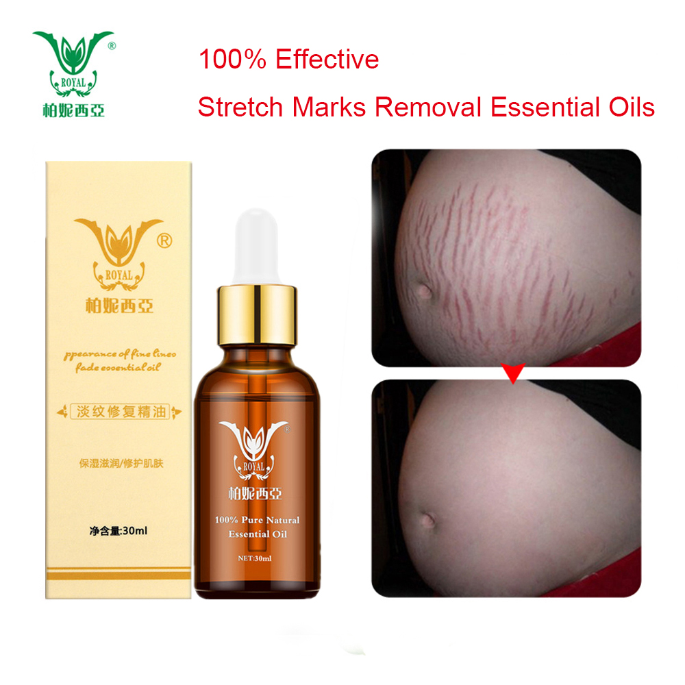 Stretch Marks Removal Essential Oils Pure Natural Stretch Marks Remover Obesity Postpartum Anti-wrinkle Repair Cream  Skin Care