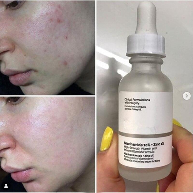 Niacinamida 10% + zinco 1% comum 30ml alta essência mineral regula sebo e minimiza os poros maquiagem primer soros faciais