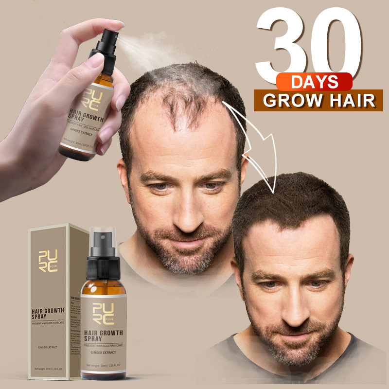 PURC 2019 Hot Fashion NEW 30ml Hair Growth Spray Extract Prevent Hair Loss Growing Hair For Men Ginger extract cure scalp growth