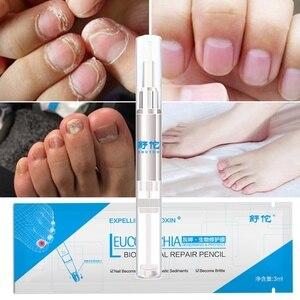 Image 3 - Lápiz para tratamiento de uñas por hongos, onicomicosis, paroniquia, antihongos, infección de uñas, cuidado Herbal chino, líquido Medicinal TSLM2, 3ML, 1 ud.