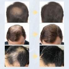 Fibres capillaires en kératine, Spray épaississant, Fibers de construction capillaire, produits contre la perte de cheveux, poudre à repousse instantanée, 27.5g, TSLM1