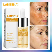 LANBENA Vitamin C Serum Hyaluronic Acid Whitening Face Serum Liquid Fade Dark Spots Remove Freckle Speckle Anti-Aging Skin Care